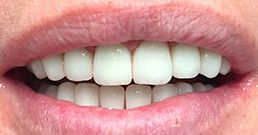 crowns on front teeth before and after