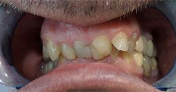dental crown reviews