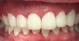 front teeth crowns before and after