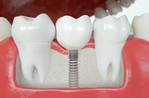 dental--implant-abroad
