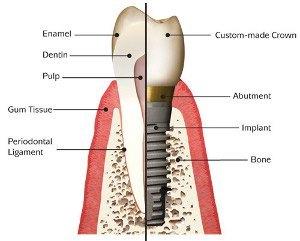 cheap teeth implants