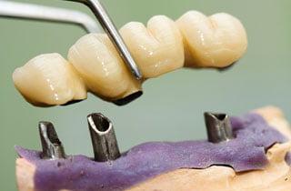 dental bridge types