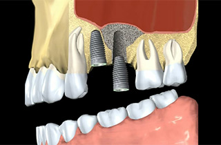 bone grafting dental
