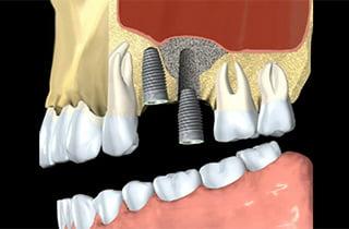 bone grafting dental