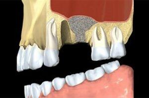 dental implant bone graft
