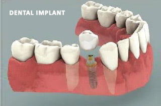 dental bridge or implant