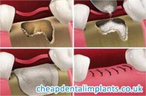 dental bone graft material