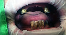 Teeth implants before and after