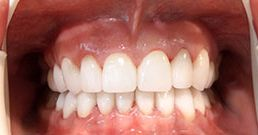 dentist recommendations
