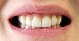 Hollywood smile before