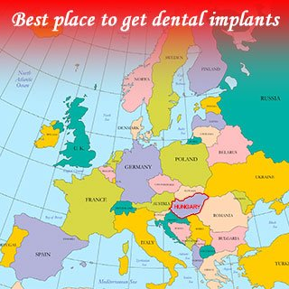 Best place to get dental implants
