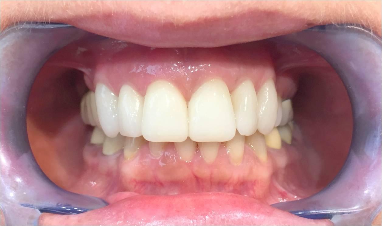 dental ratings