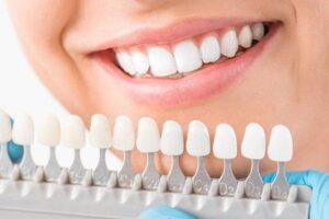 dental-bridge-procedure