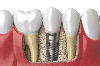 dental-implants-hungary