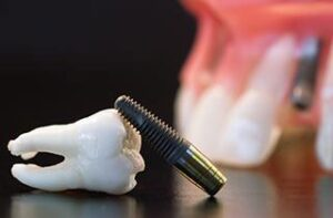 immediate-loading-of-dental-implants