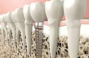 teeth-facts